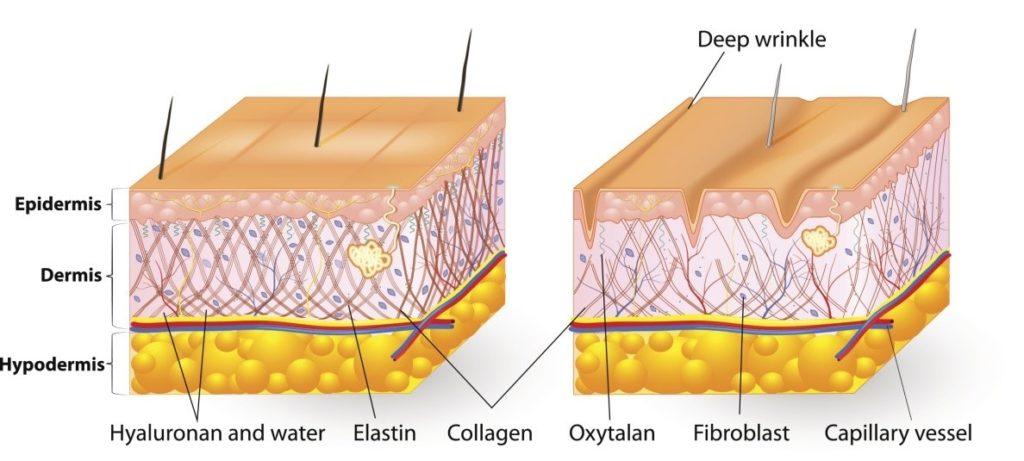 Peau hydratée / deshydratée