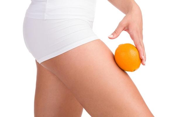 Tout savoir sur la peau d'orange